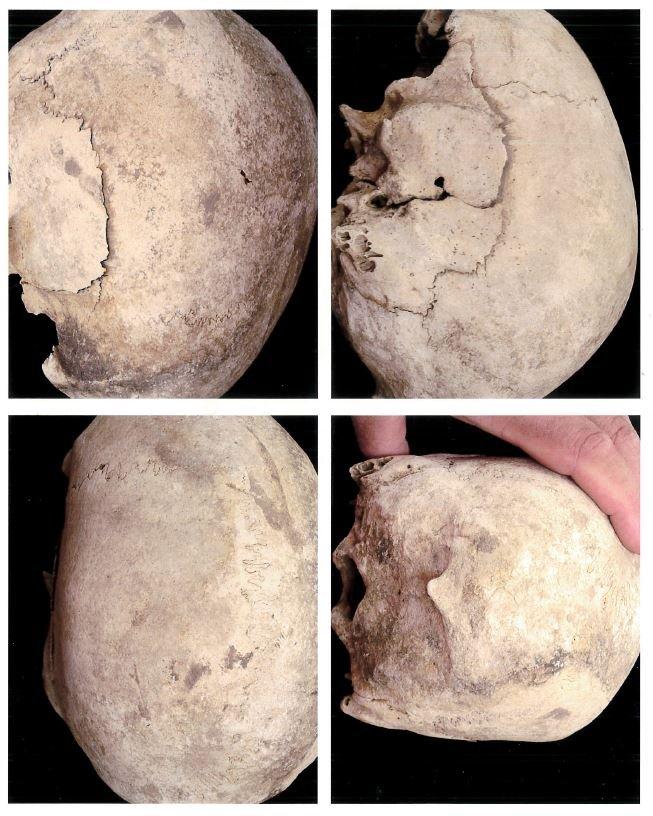 bones 3