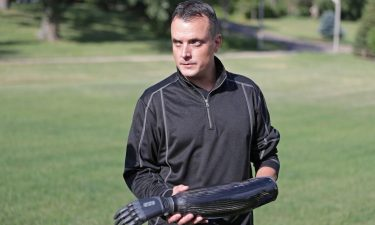 Ben Shortreed had to have his left hand amputated last year after it was severely injured when a mortar exploded as he was lighting fireworks with friends outside of his town of Verona home. One of his two prostheses responds to sensors on his forearm to allow the hand to open